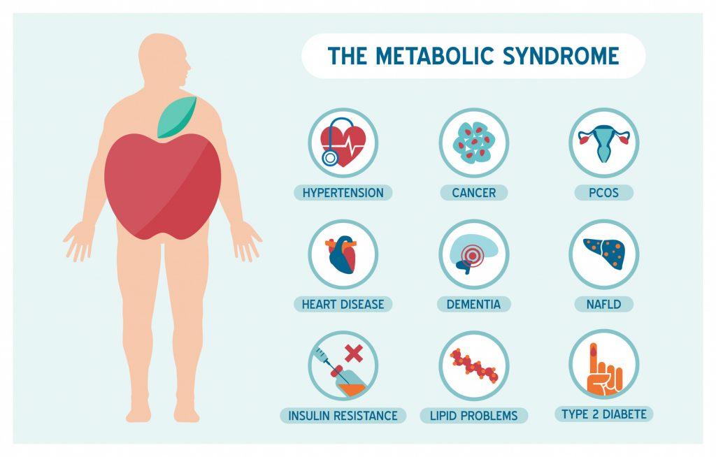 Zespół metaboliczny dotyczy ok. 20% dorosłej populacji! Rozmowa z dr n. med. Pawłem Niedźwieckim